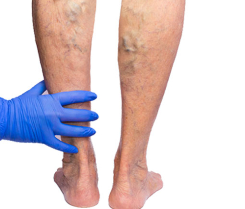Varicose veins and other deformities of the veins
