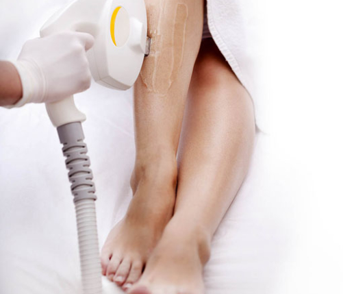 hair-removal-tijuana