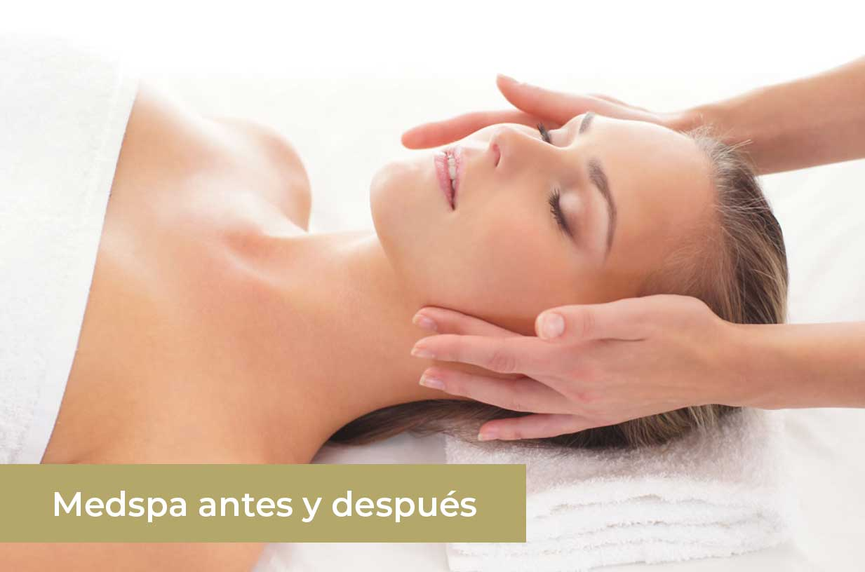 medspa-antes-y-despues