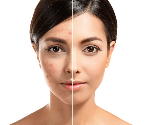 photofacial treatment in tijuana
