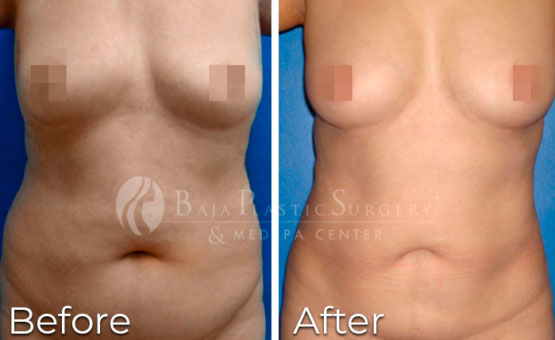 before-and-after-liposuction-photos